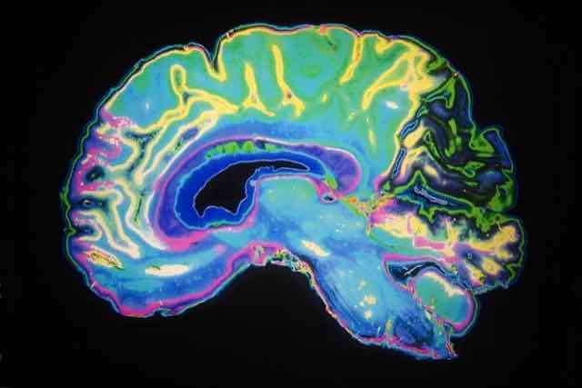 imagem de um cérebro com hemorragia