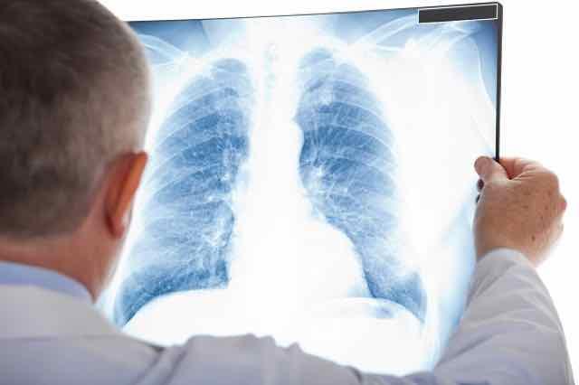 médico olhando raio-x