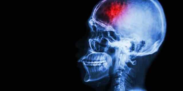raio x de um cerebro com sangramento