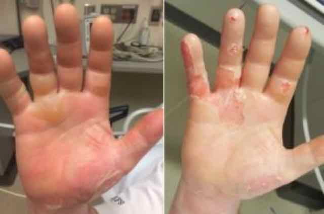 mãos queimadas FIGURE 1