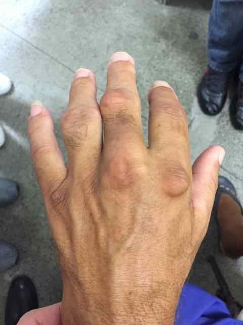 mãos inchadas