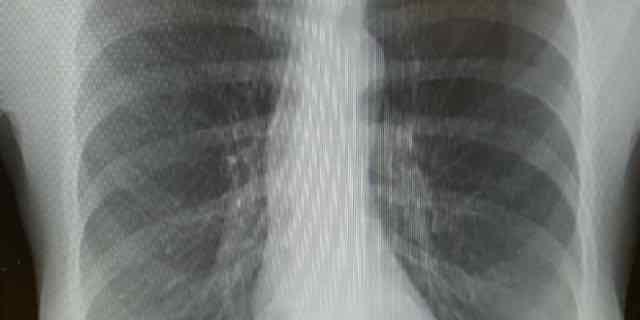 raio x de tórax