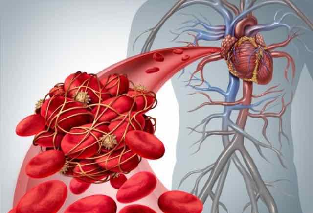 coágulo de sangue