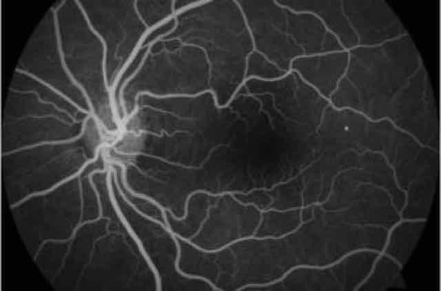 angiografia fluoresceínica