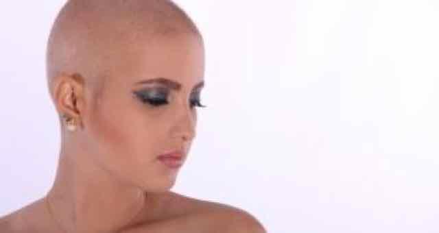 mulher sem cabelos pós-quimioterapia
