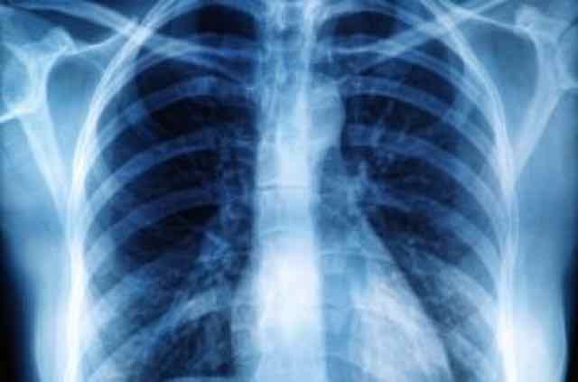 imagem de raio x do pulmao