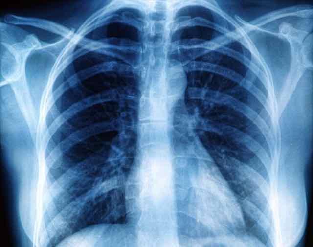 doença hepática