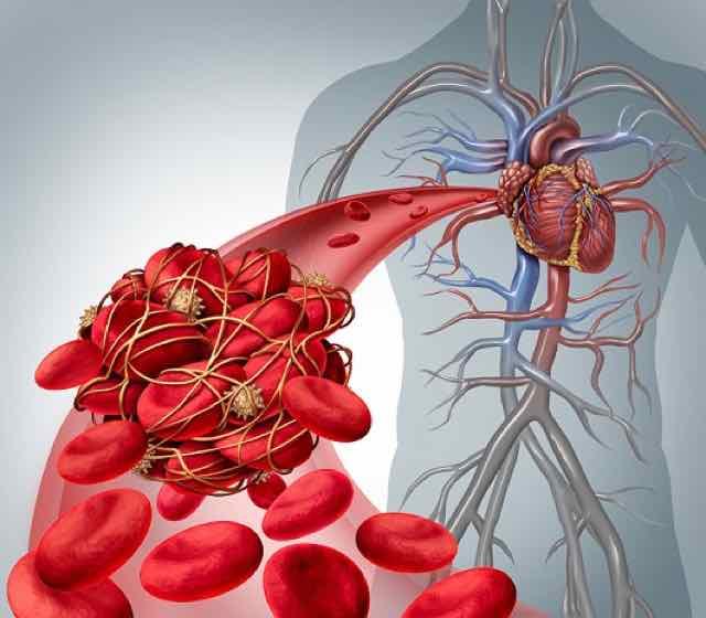 coagulo no sangue com risco de trombose