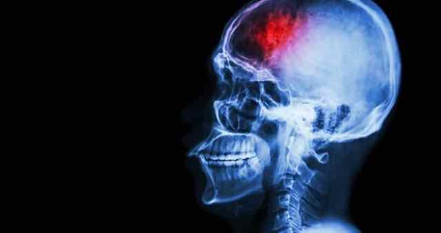raio x de um cerebro apos um derrame