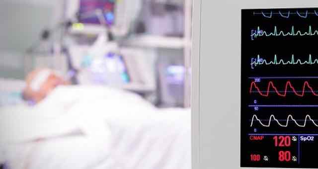 monitor cardiaco de paciente na terapia intensiva