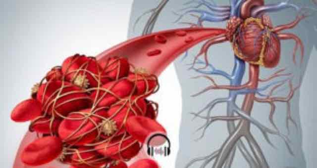 paciente com embolia pulmonar
