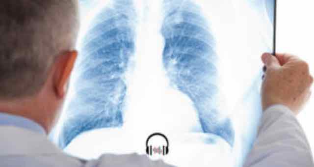 médico analisando radiografia de tórax