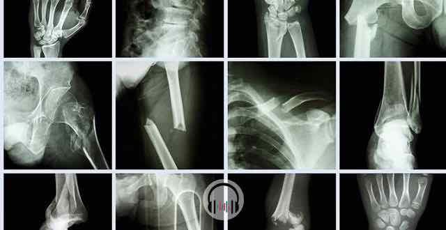 imagens de raio x