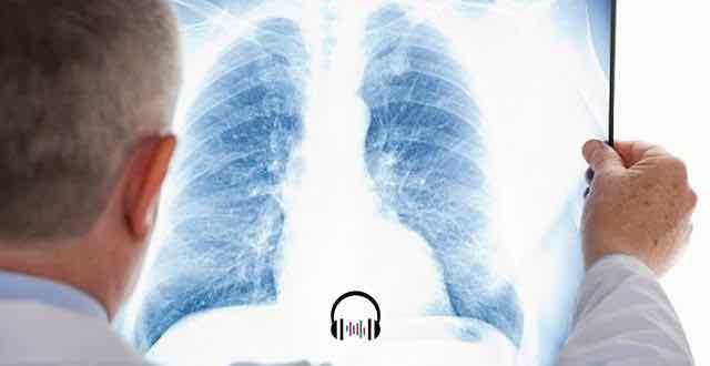 medico olhando uma radiografia do torax