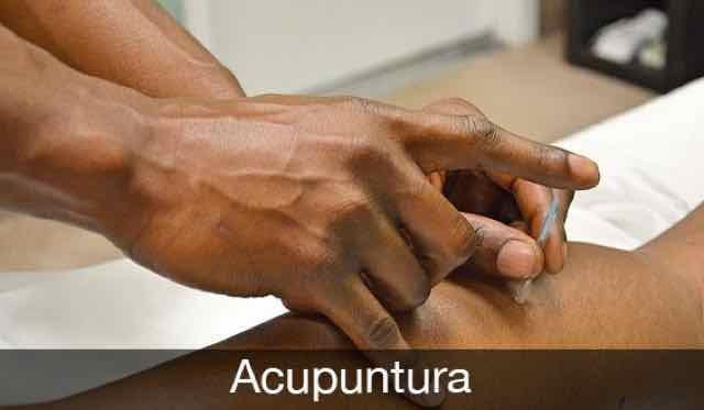 medico fazendo acupuntura