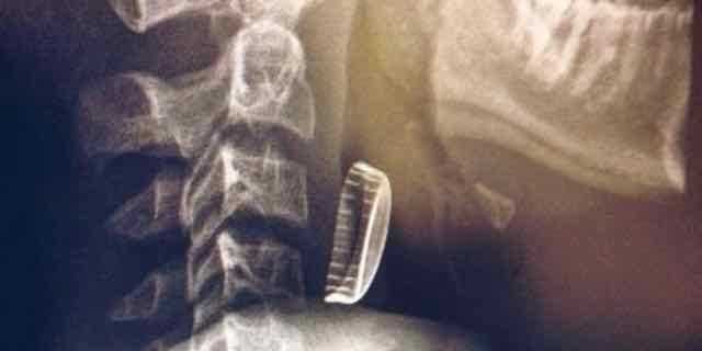 raio x de uma tampinha presa na garganta de uma pessoa
