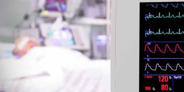 monitor cardiaco em sala de emergencia com paciente grave
