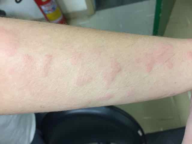 lesões pruriginosas no braço