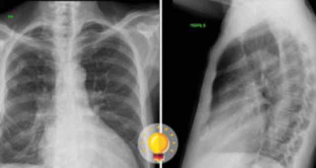 radiografias de torax