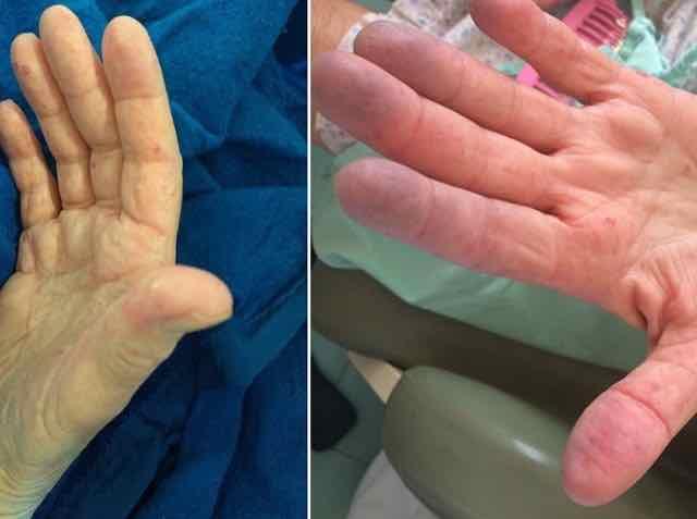 nodulos nas mãos