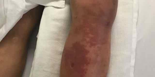 rash na perna