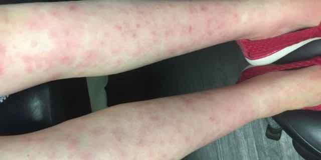 paciente com rash nas pernas