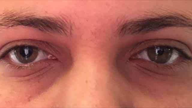 pupila de adie
