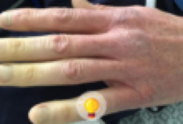 descoloração na mão