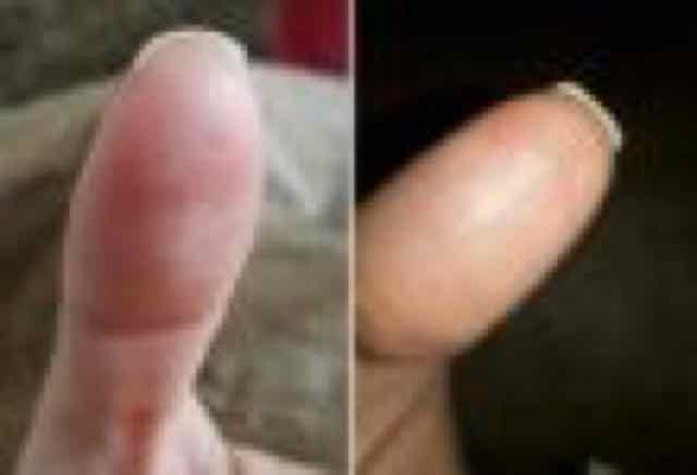 lesao no dedão