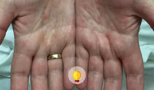 rash nas mãos