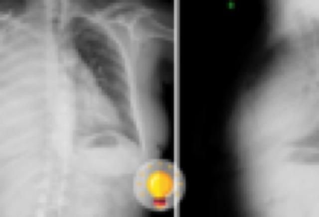 radiografia de torax de paciente mulher
