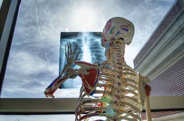 esqueleto humano olhando uma radiografia