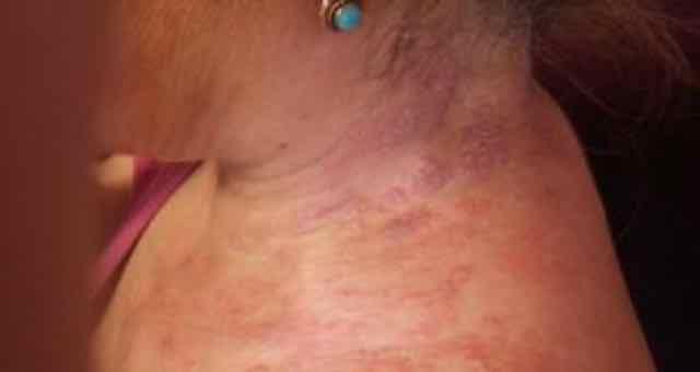 vesículas eritematosas no pescoço