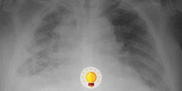 raio x de torax