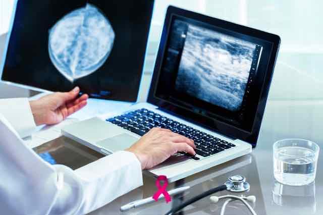 médico olhando resultados da mamografia