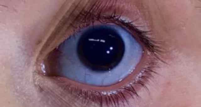 esclera azul