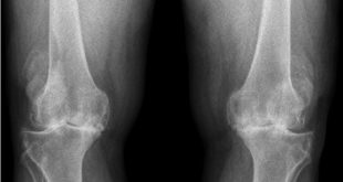 osteoartrite do joelho