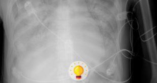 radiografia quiz