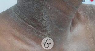 lesoes de pele caso clinico