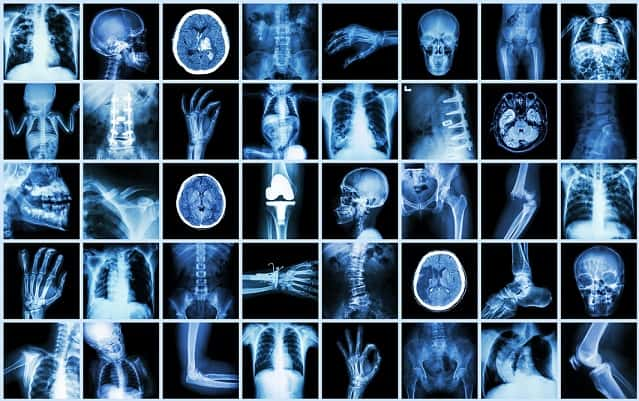 atlas de radiologia