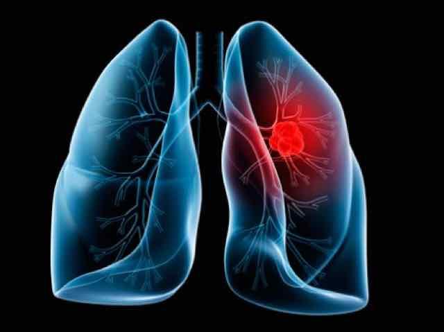 Tromboembolismo pulmonar manifestaciones clinicas