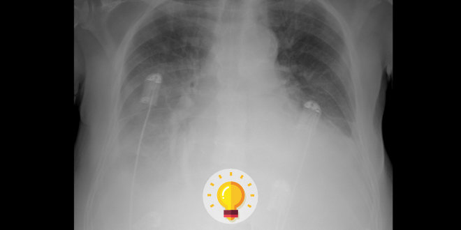 radiografia torax