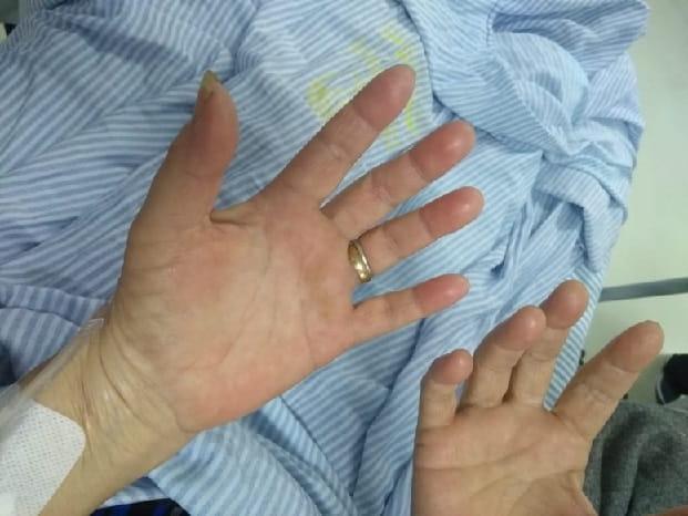 dor nas mãos