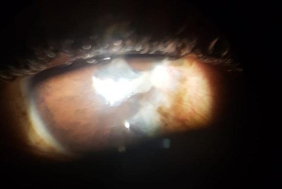 trauma oftalmologico
