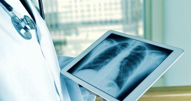 pneumonia redonda
