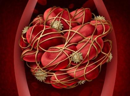 trombose venosaprofunda