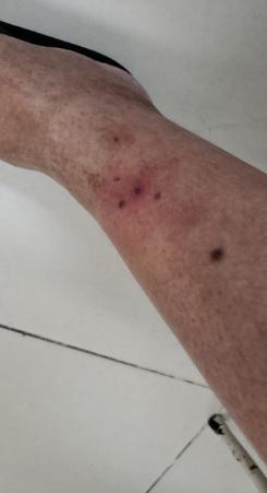 Irradiando dor nas pernas dos quadris