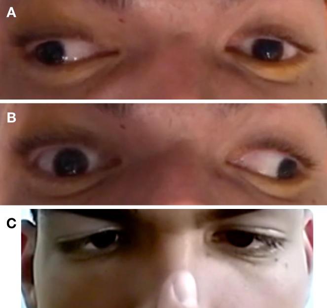 Oftalmoparesia-internuclear-bilateral-secundária-a-esclerose-múltipla-relato-de-caso