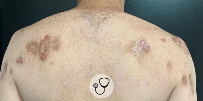 caso clínico queloide