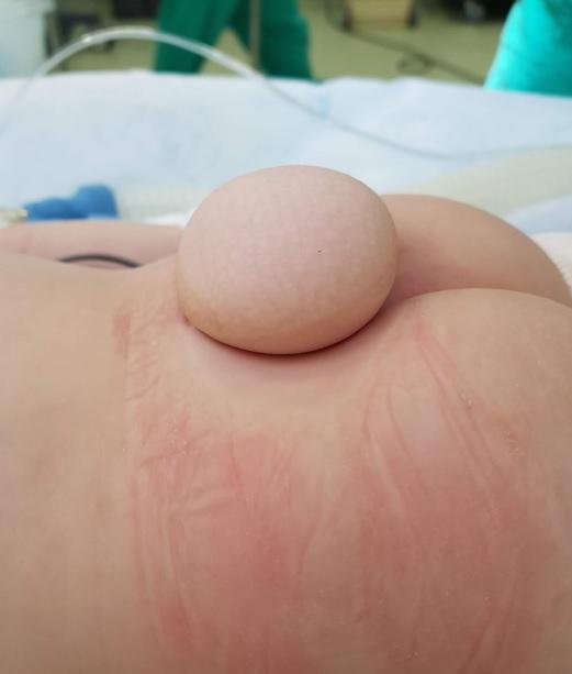 medula ancorada